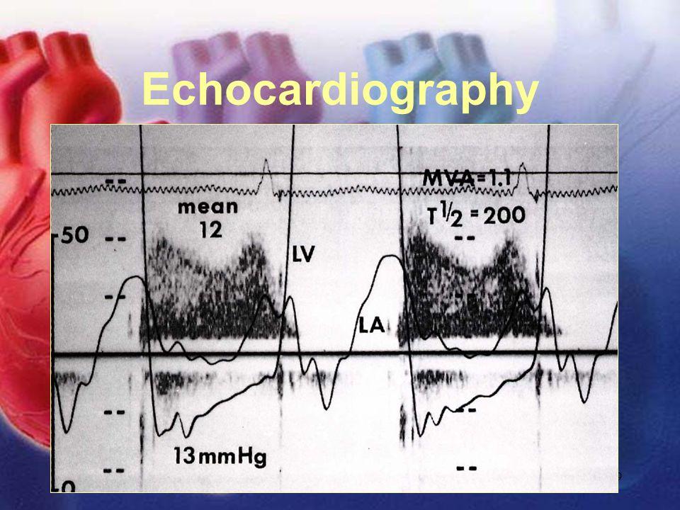 11/12/02Lubna Piracha, D.O.19 Echocardiography