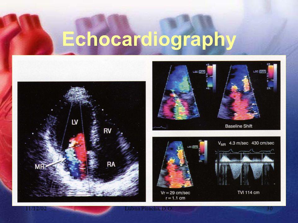 11/12/02Lubna Piracha, D.O.30 Echocardiography