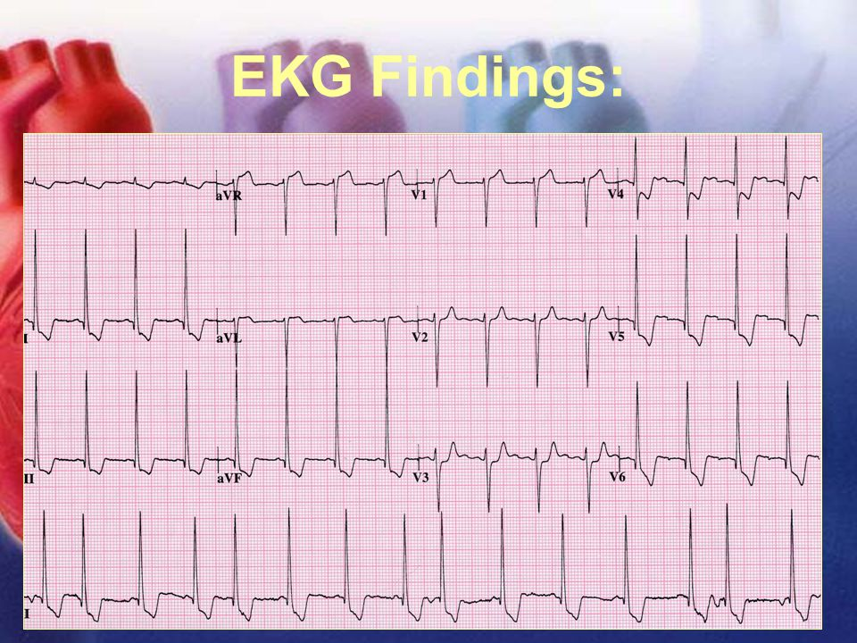 11/12/02Lubna Piracha, D.O.36 EKG Findings: