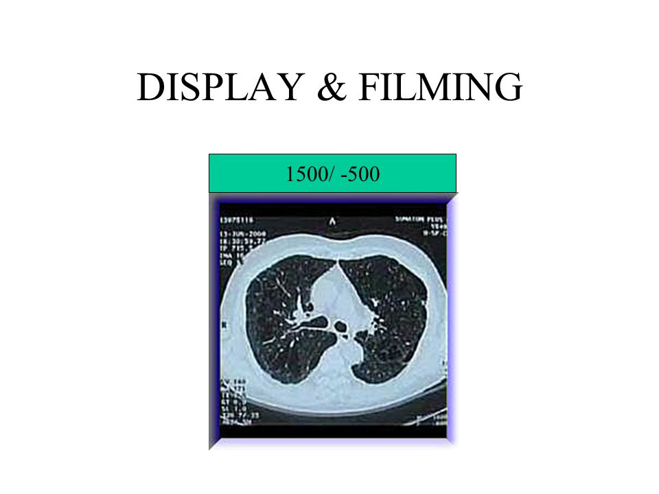 DISPLAY & FILMING 1500/ -500