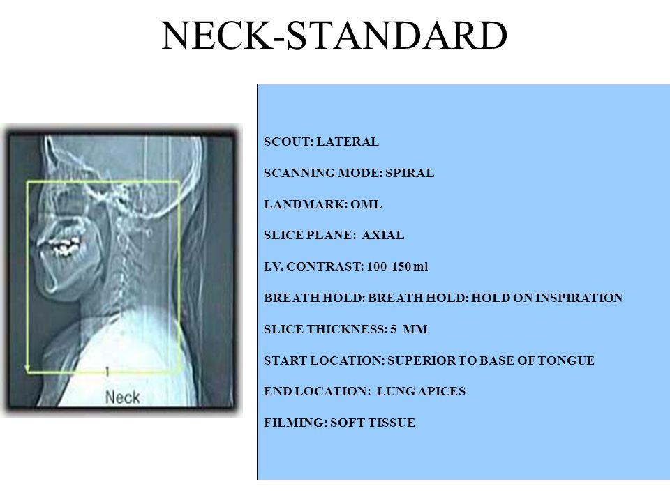 SCOUT: LATERAL SCANNING MODE: SPIRAL LANDMARK: OML SLICE PLANE: AXIAL I.V.