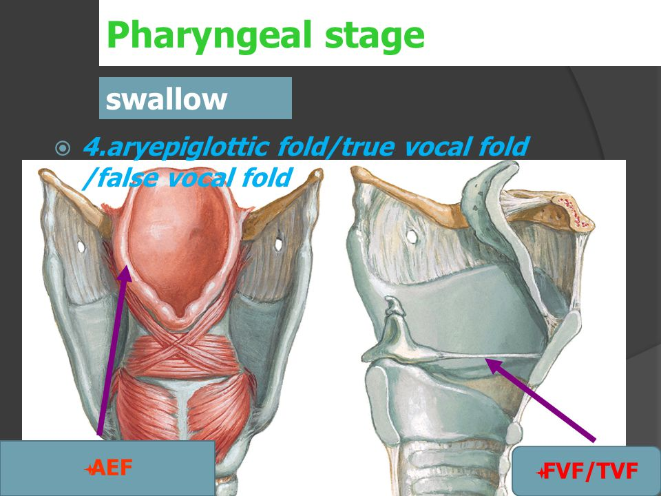  4.aryepiglottic fold/true vocal fold /false vocal fold Pharyngeal stage swallow  AEF  FVF/TVF