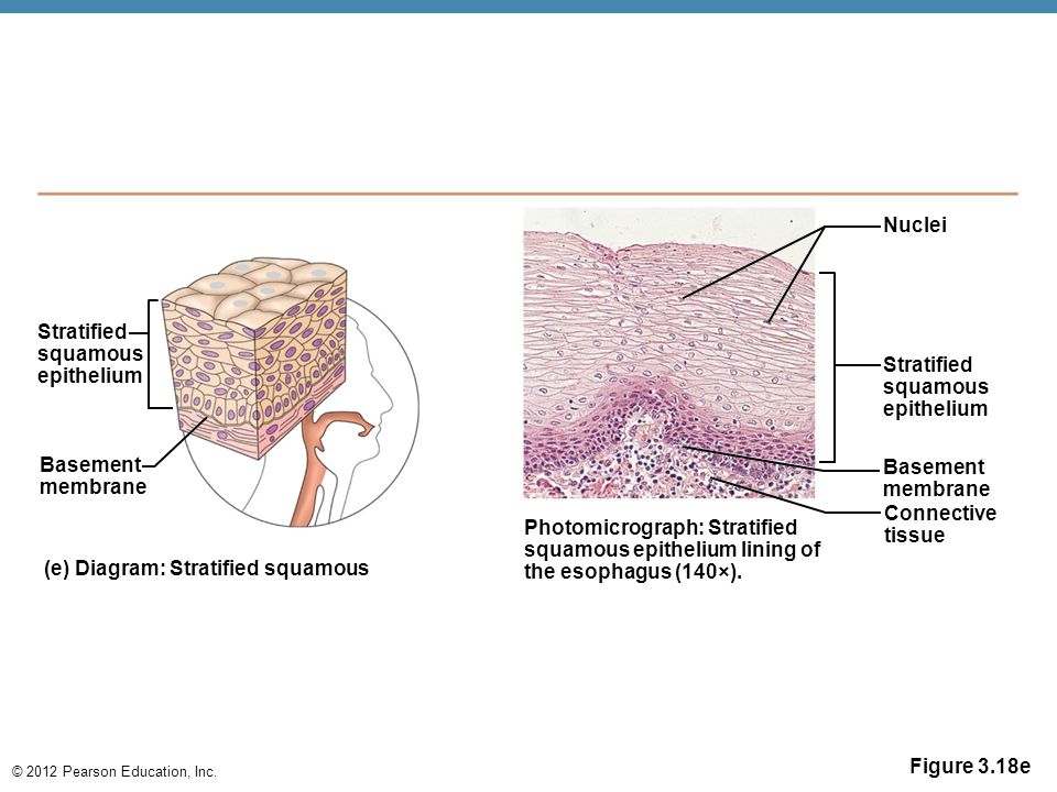 © 2012 Pearson Education, Inc. Figure 3.18e Stratified squamous epithelium Basement membrane (e) Diagram: Stratified squamous Photomicrograph: Stratif