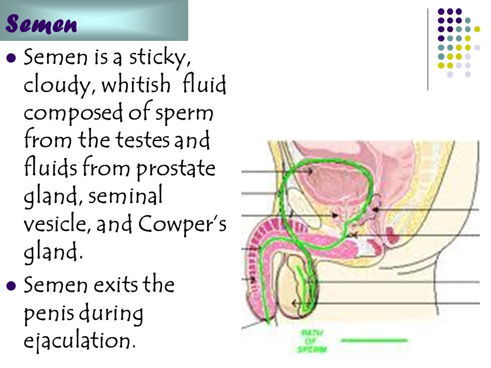Semen Semen is a sticky, cloudy, whitish fluid composed of sperm from the testes and fluids from prostate gland, seminal vesicle, and Cowper's gland.