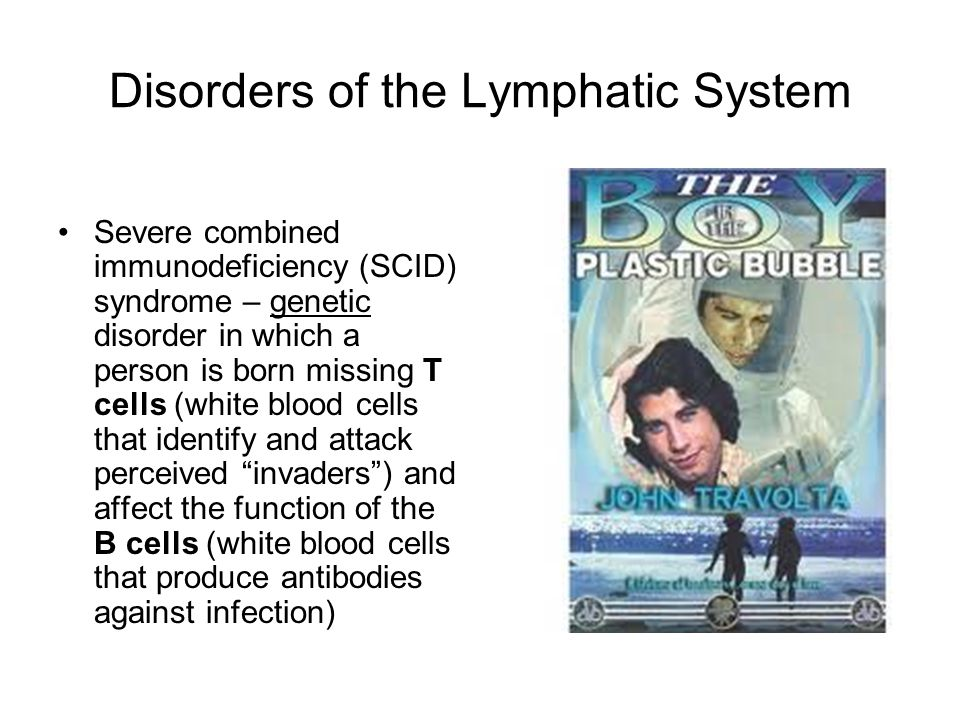 Disorders of the Lymphatic System Severe combined immunodeficiency (SCID) syndrome – genetic disorder in which a person is born missing T cells (white
