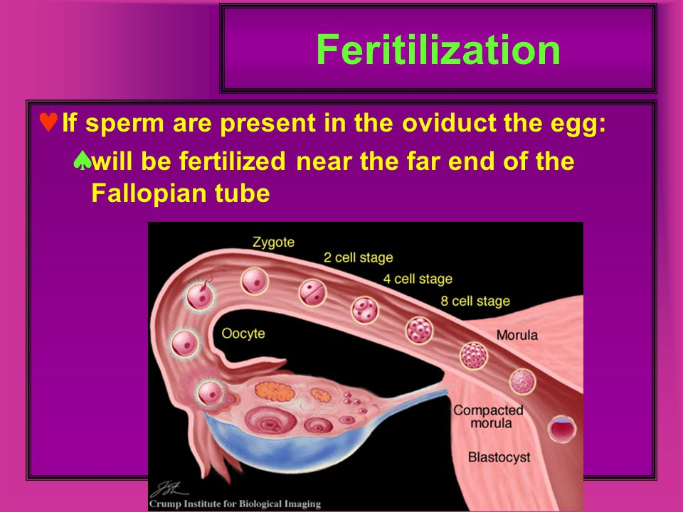 Feritilization If sperm are present in the oviduct the egg:  will be fertilized near the far end of the Fallopian tube