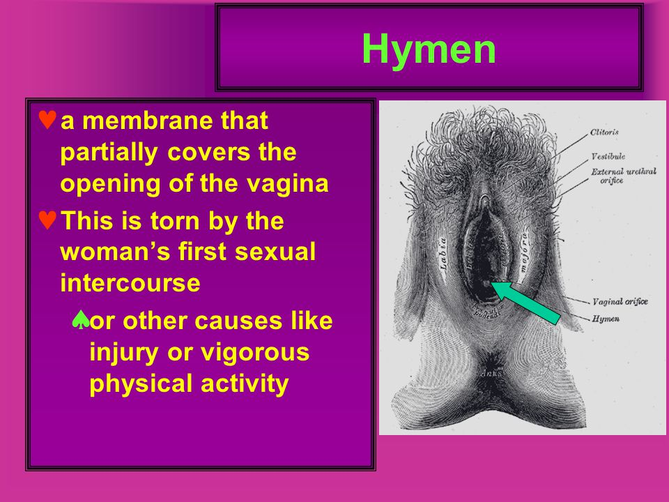 Hymen a membrane that partially covers the opening of the vagina This is torn by the woman's first sexual intercourse  or other causes like injury or