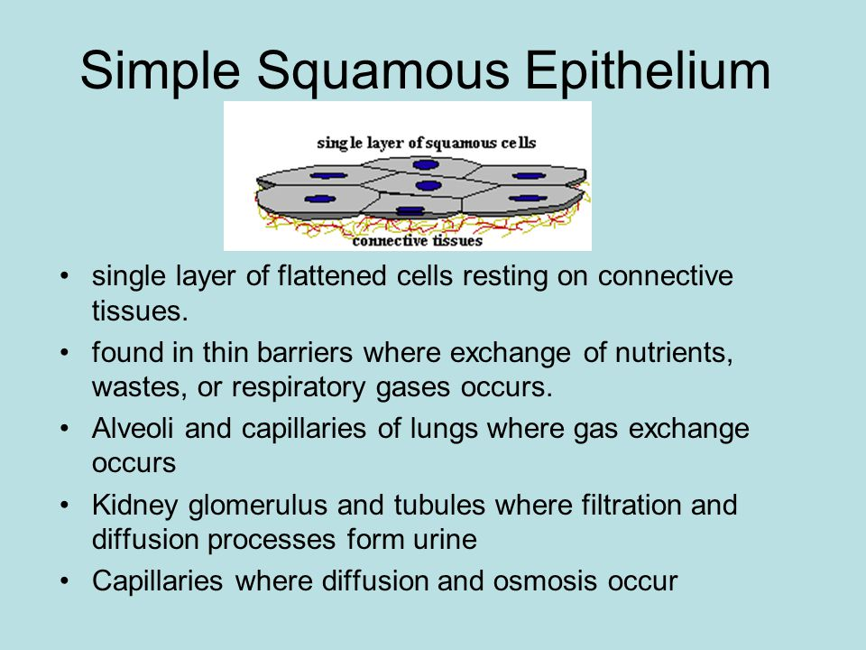 Stratified or not Epithelium can be simple or stratified.
