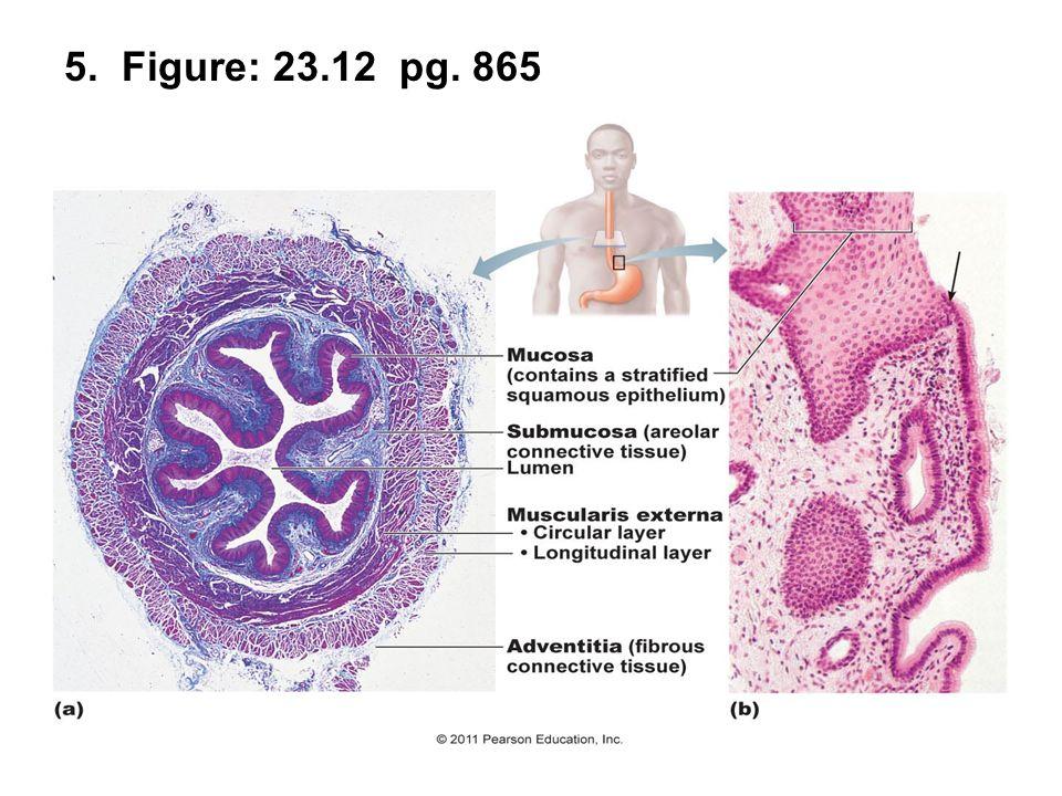 36. Figure: 23.29a; page: 891