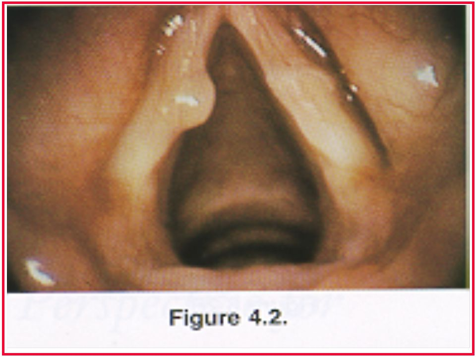 Vocal Tract Nasal Cavity Soft Palate Oropharynx Laryngopharynx Oral Cavity Vocal Folds Trachea Oral Cavity Nasal Cavity