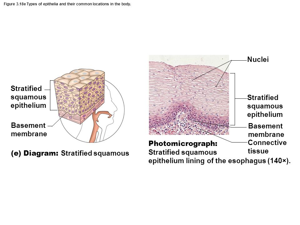 Figure 3.18e Types of epithelia and their common locations in the body. Basement membrane Connective tissue Stratified squamous epithelium (e) Diagram