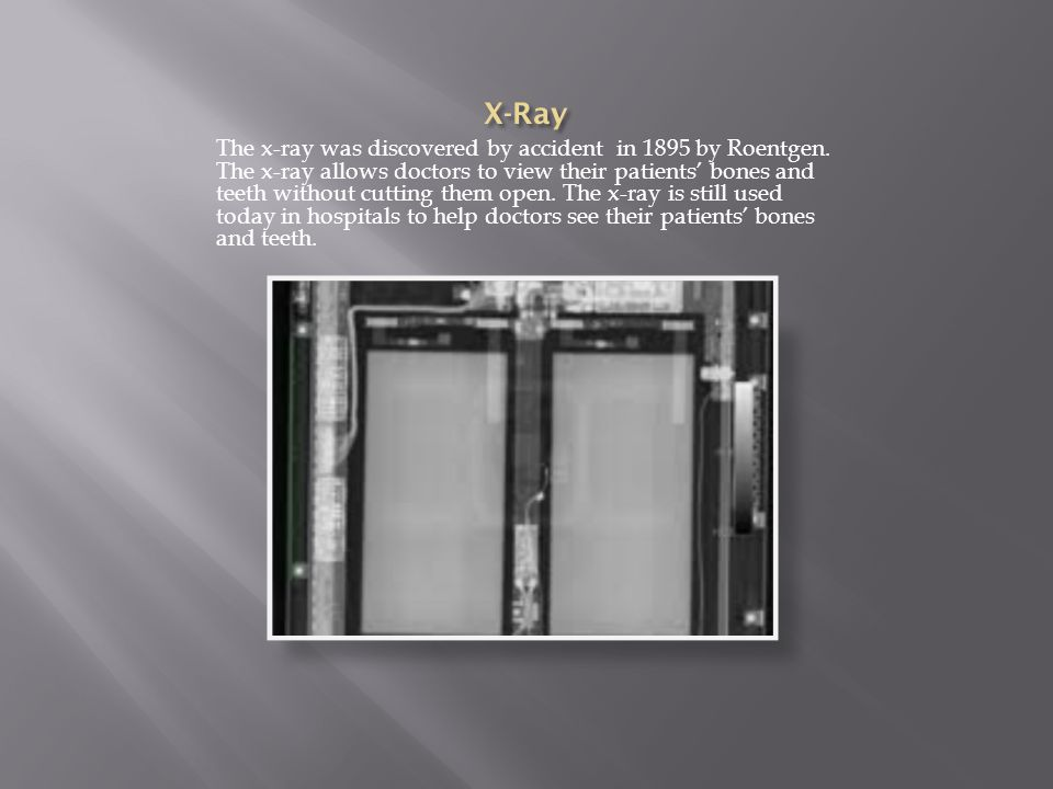 The x-ray was discovered by accident in 1895 by Roentgen.
