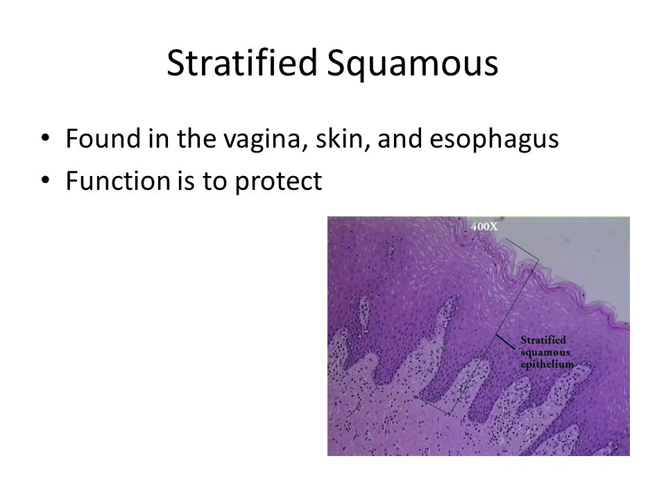 Stratified Squamous Found in the vagina, skin, and esophagus Function is to protect