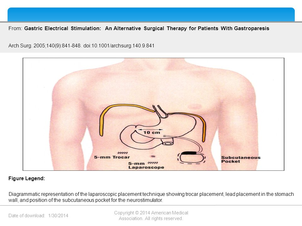Date of download: 1/30/2014 Copyright © 2014 American Medical Association. All rights reserved. From: Gastric Electrical Stimulation: An Alternative S