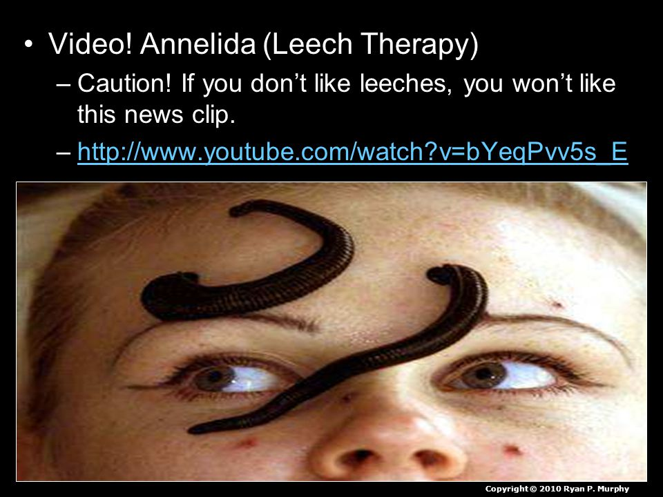 Video. Annelida (Leech Therapy) –Caution.
