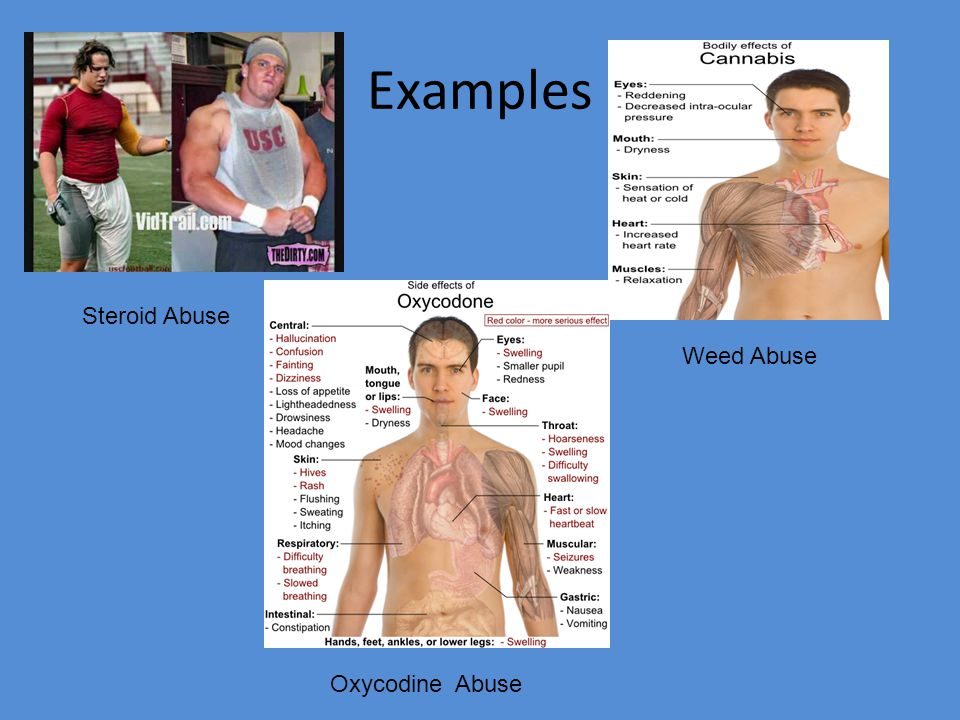 Examples Steroid Abuse Weed Abuse Oxycodine Abuse