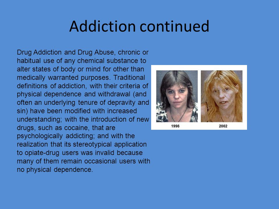 Addiction of Drug Abuse Drug abuse is an increasing problem in our affluent societies and carries great social and economic costs through its impacts on crime and health.