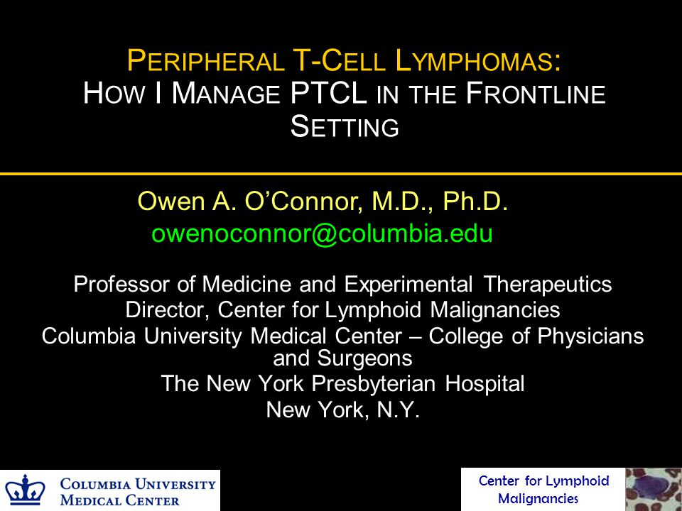 P ERIPHERAL T-C ELL L YMPHOMAS : H OW I M ANAGE PTCL IN THE F RONTLINE S ETTING Professor of Medicine and Experimental Therapeutics Director, Center f