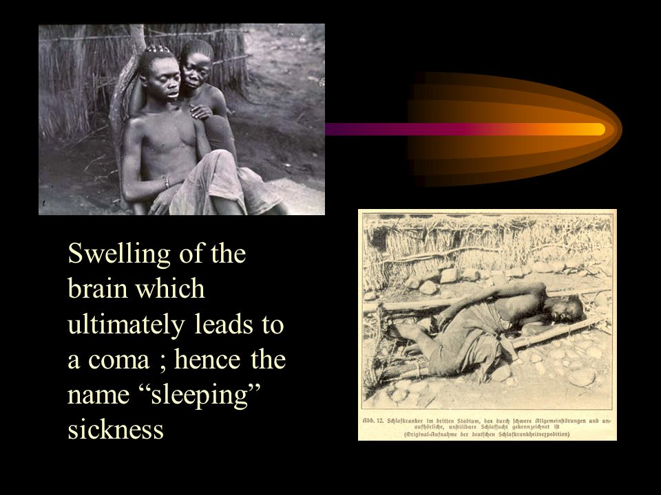 "Swelling of the brain which ultimately leads to a coma ; hence the name ""sleeping"" sickness"
