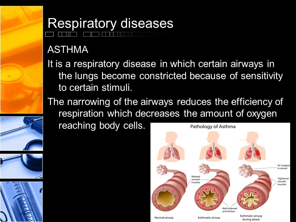 Respiratory diseases ASTHMA It is a respiratory disease in which certain airways in the lungs become constricted because of sensitivity to certain stimuli.