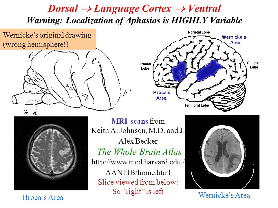 Dorsal  Language Cortex  Ventral Warning: Localization of Aphasias is HIGHLY Variable Wernicke's original drawing (wrong hemisphere!) Broca's Area (Negative Image) Wernicke's Area MRI-scans from Keith A.