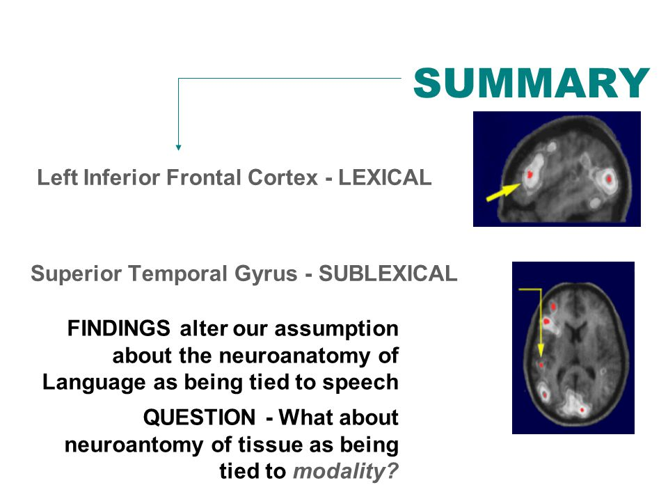 SUMMARY Left Inferior Frontal Cortex - LEXICAL Superior Temporal Gyrus - SUBLEXICAL FINDINGS alter our assumption about the neuroanatomy of Language as being tied to speech QUESTION - What about neuroantomy of tissue as being tied to modality?