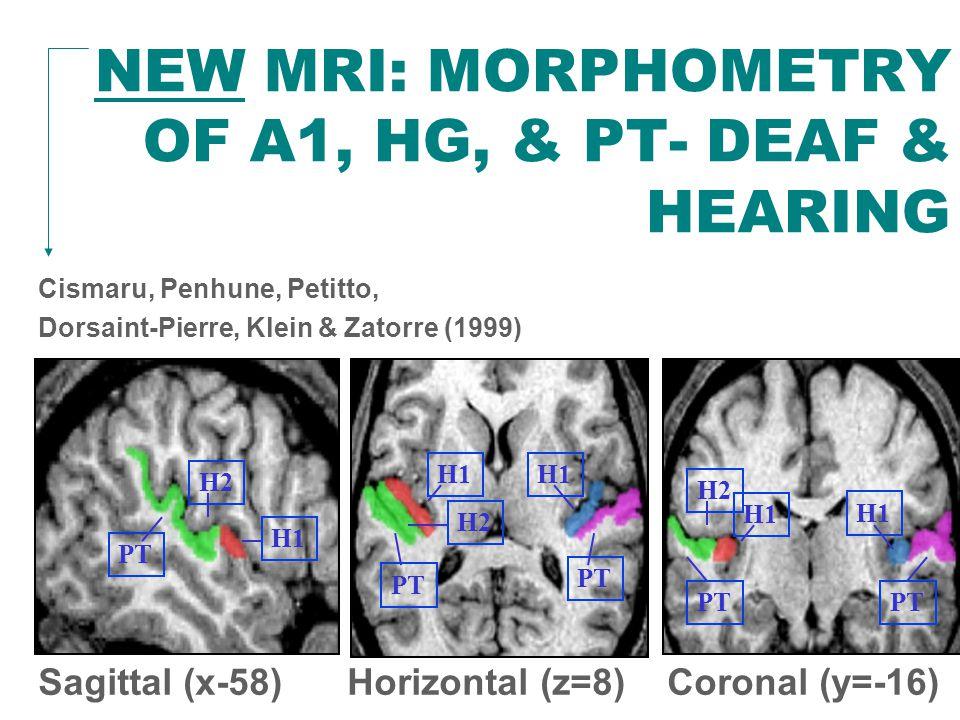 NEW MRI: MORPHOMETRY OF A1, HG, & PT- DEAF & HEARING Cismaru, Penhune, Petitto, Dorsaint-Pierre, Klein & Zatorre (1999) Sagittal (x-58) Horizontal (z=8) Coronal (y=-16) PT H2 H1 PT H2 H1 PT H1 H2
