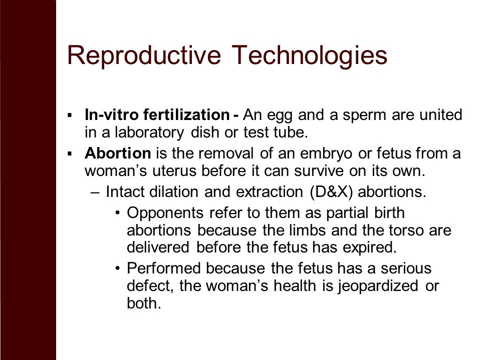 Reproductive Technologies  In-vitro fertilization - An egg and a sperm are united in a laboratory dish or test tube.