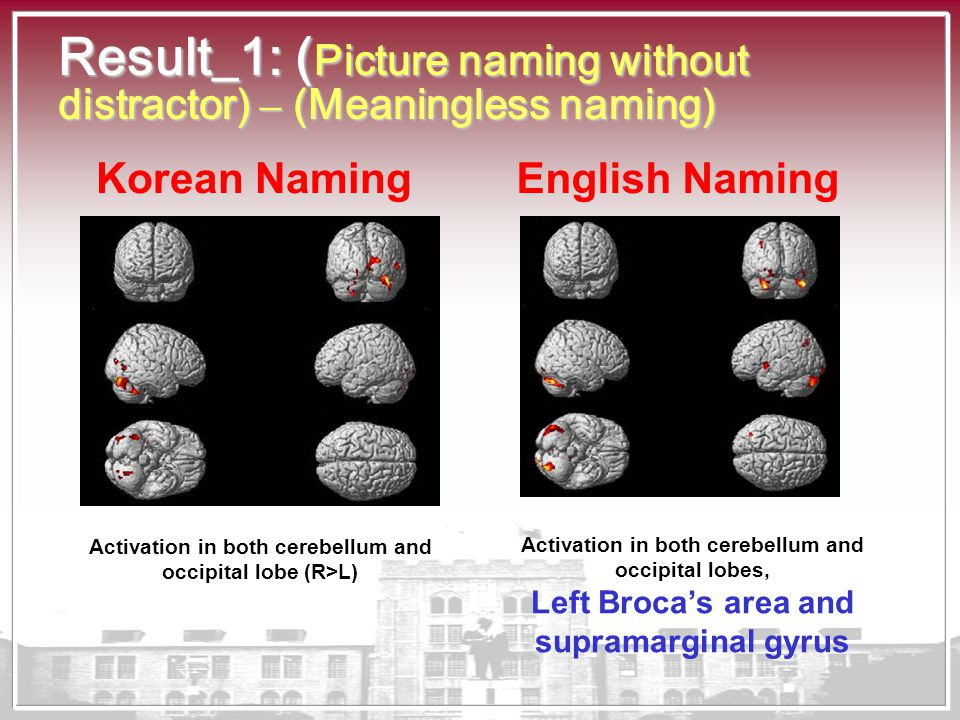 Result_1: ( Picture naming without distractor) – (Meaningless naming) Activation in both cerebellum and occipital lobe (R>L) Activation in both cerebe