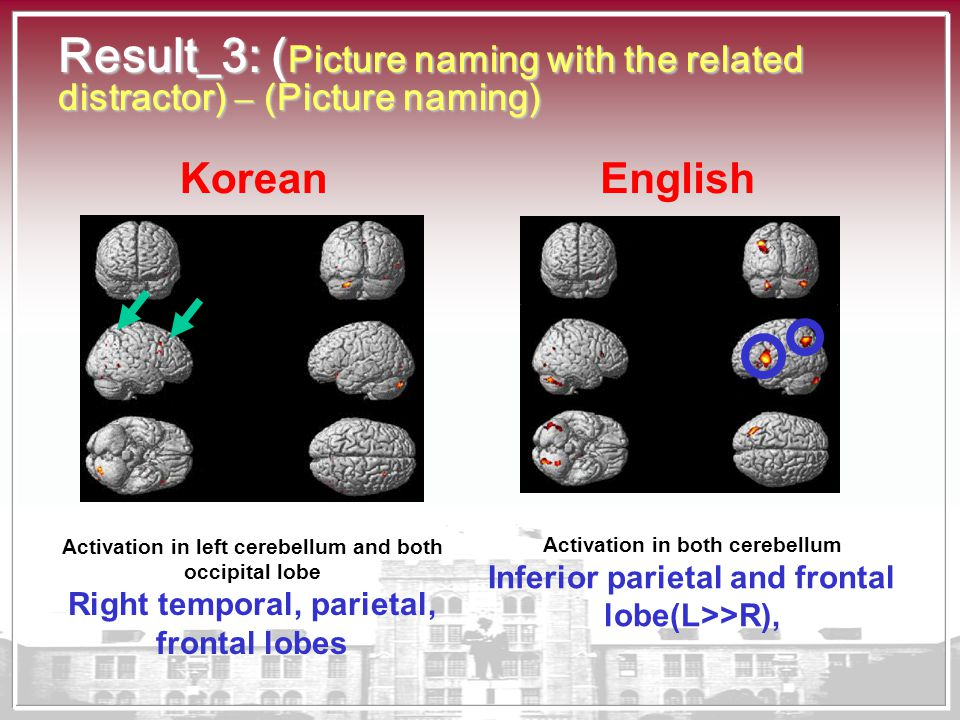 Result_3: ( Picture naming with the related distractor) – (Picture naming) Activation in left cerebellum and both occipital lobe Right temporal, parie