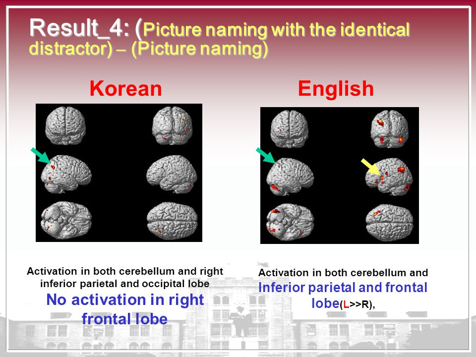 Result_4: ( Picture naming with the identical distractor) – (Picture naming) Activation in both cerebellum and right inferior parietal and occipital l