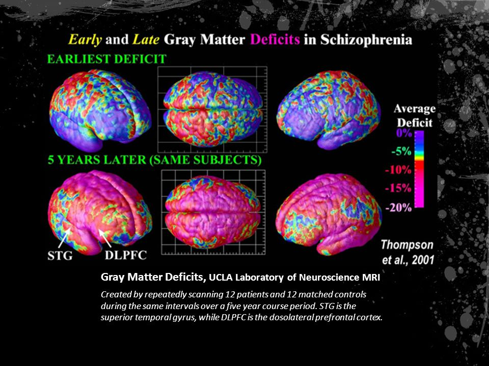 Gray Matter Deficits, UCLA Laboratory of Neuroscience MRI Created by repeatedly scanning 12 patients and 12 matched controls during the same intervals over a five year course period.