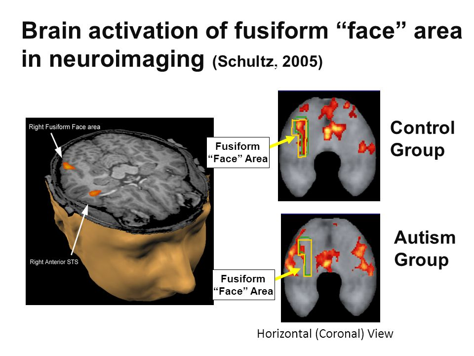 Brain activation of fusiform face area in neuroimaging (Schultz, 2005) Schultz, et al.
