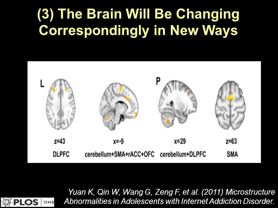 (3) The Brain Will Be Changing Correspondingly in New Ways Yuan K, Qin W, Wang G, Zeng F, et al.