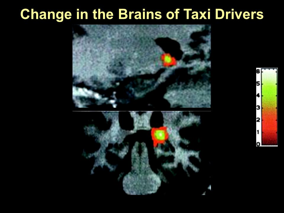 Maguire, E.A., et al., Proc Natl Acad Sci U S A, 2000. 97(8): p. 4398- 403. Change in the Brains of Taxi Drivers
