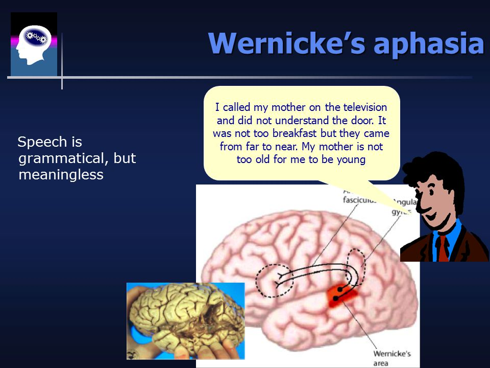 Wernicke's aphasia Speech is grammatical, but meaningless I called my mother on the television and did not understand the door.