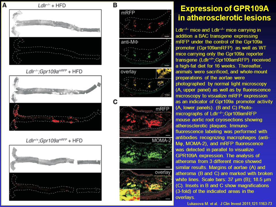 Expression of GPR109A in atherosclerotic lesions Ldlr –/– mice and Ldlr –/– mice carrying in addition a BAC transgene expressing mRFP under the control of the Gpr109a promoter (Gpr109amRFP) as well as WT mice carrying only the Gpr109a reporter transgene (Ldlr +/+ ;Gpr109amRFP) received a high-fat diet for 16 weeks.