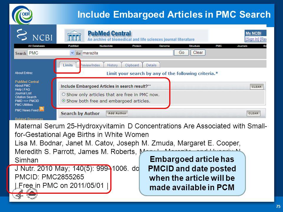 75 Include Embargoed Articles in PMC Search Maternal Serum 25-Hydroxyvitamin D Concentrations Are Associated with Small- for-Gestational Age Births in White Women Lisa M.