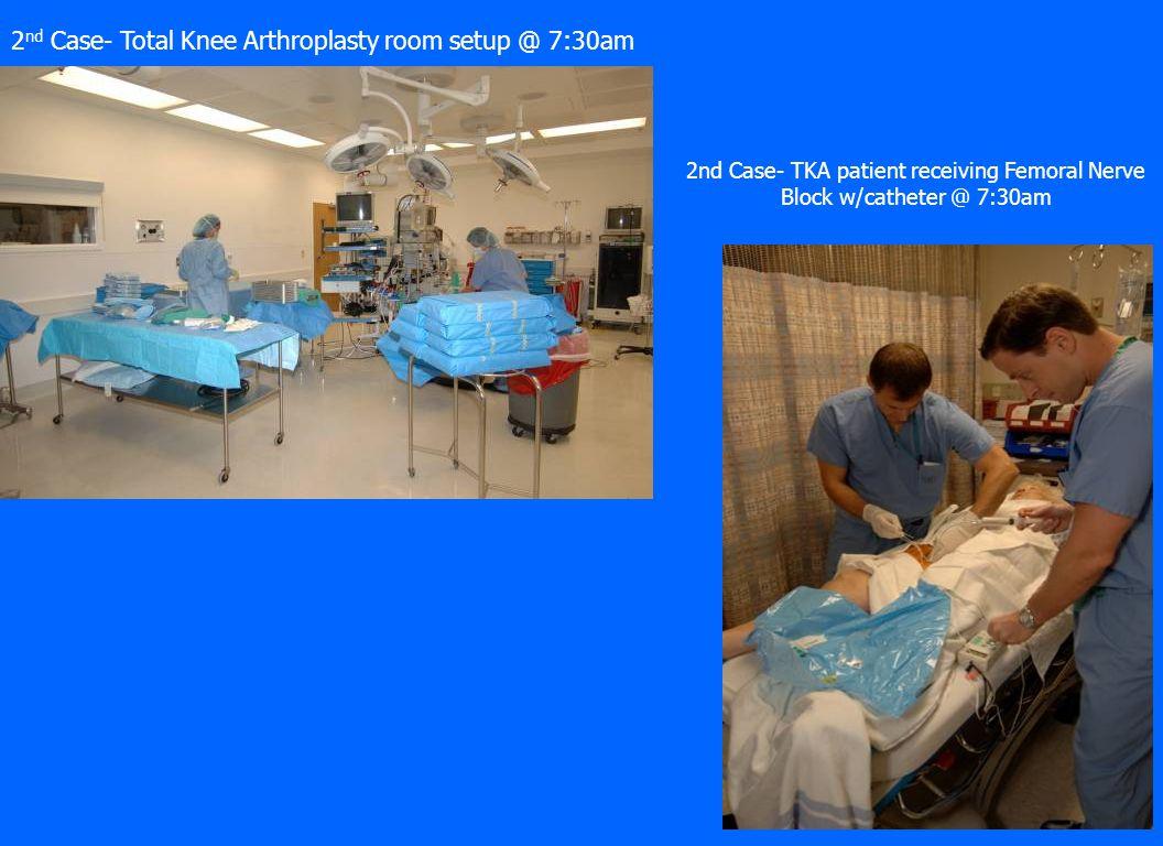 25 2 nd Case- Total Knee Arthroplasty room setup @ 7:30am 2nd Case- TKA patient receiving Femoral Nerve Block w/catheter @ 7:30am