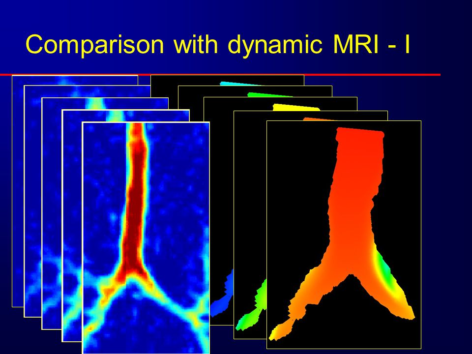 Comparison with dynamic MRI - I