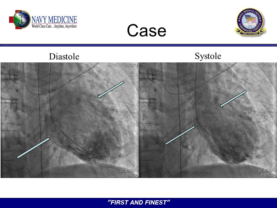 """FIRST AND FINEST"" Diastole Systole Case"