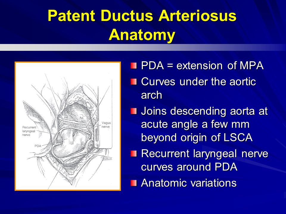 PDA = extension of MPA Curves under the aortic arch Joins descending aorta at acute angle a few mm beyond origin of LSCA Recurrent laryngeal nerve cur