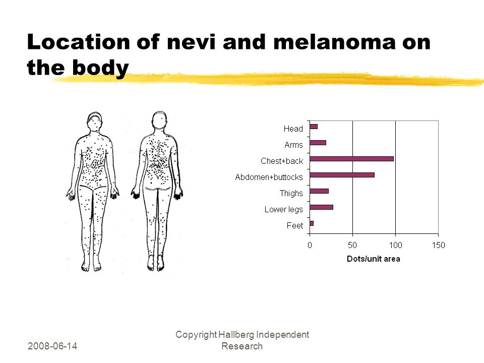 2008-06-14 Copyright Hallberg Independent Research Location of nevi and melanoma on the body