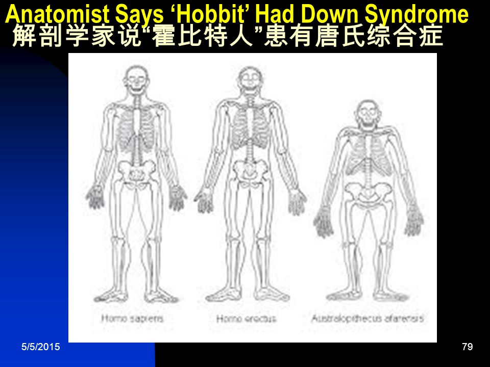 5/5/201579 Anatomist Says 'Hobbit' Had Down Syndrome 解剖学家说 霍比特人 患有唐氏综合症