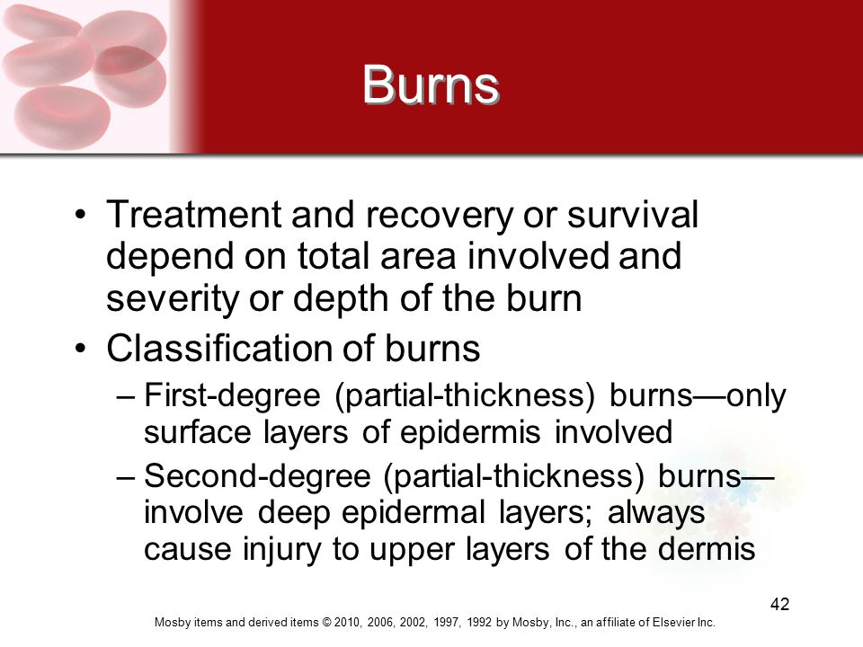 Mosby items and derived items © 2010, 2006, 2002, 1997, 1992 by Mosby, Inc., an affiliate of Elsevier Inc. 42 Burns Treatment and recovery or survival