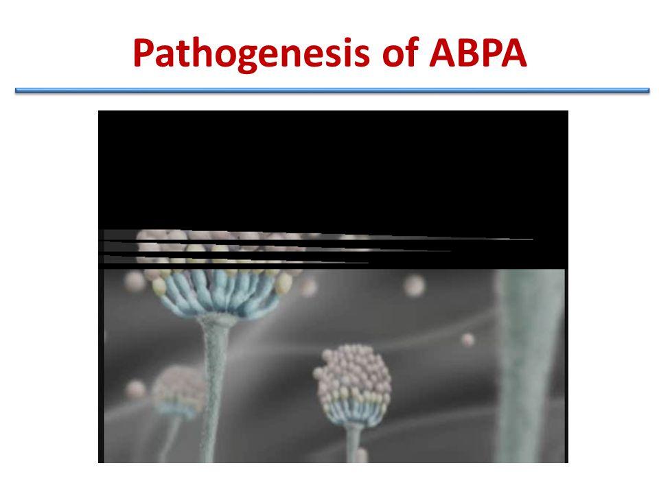 Pathogenesis of ABPA
