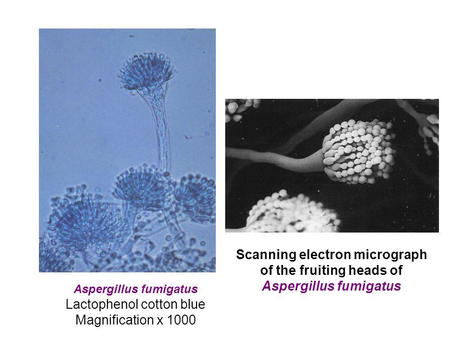 Aspergillus fumigatus Lactophenol cotton blue Magnification x 1000 Scanning electron micrograph of the fruiting heads of Aspergillus fumigatus