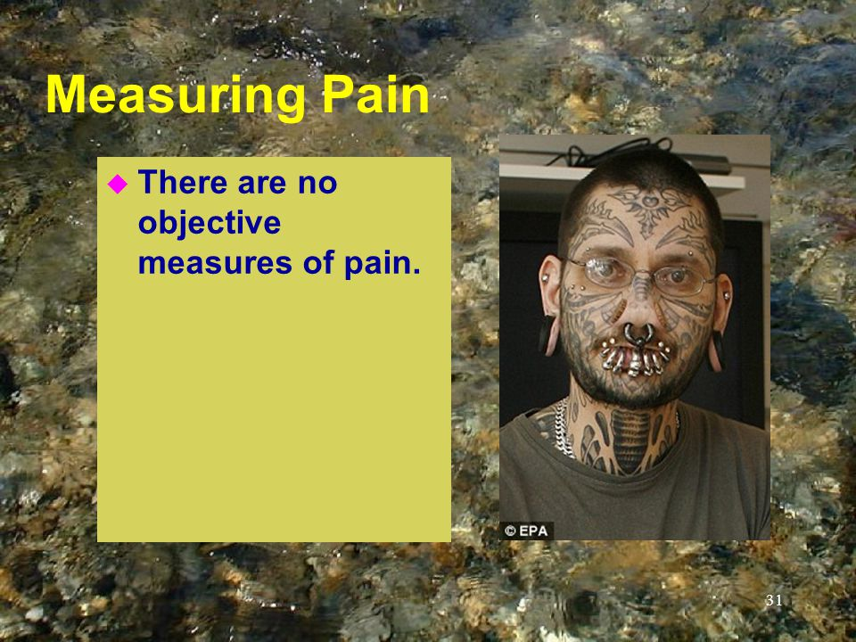 Measuring Pain u There are no objective measures of pain. 31