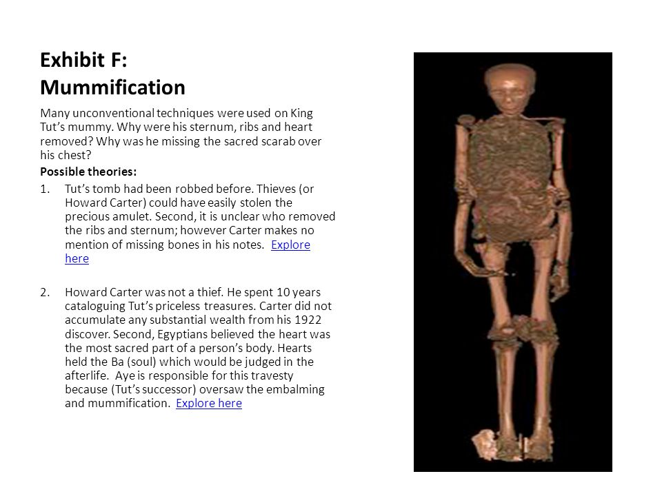 Exhibit F: Mummification Many unconventional techniques were used on King Tut's mummy. Why were his sternum, ribs and heart removed? Why was he missin