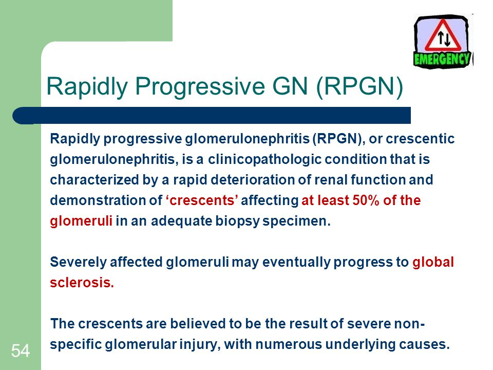 54 Rapidly Progressive GN (RPGN) Rapidly progressive glomerulonephritis (RPGN), or crescentic glomerulonephritis, is a clinicopathologic condition that is characterized by a rapid deterioration of renal function and demonstration of 'crescents' affecting at least 50% of the glomeruli in an adequate biopsy specimen.